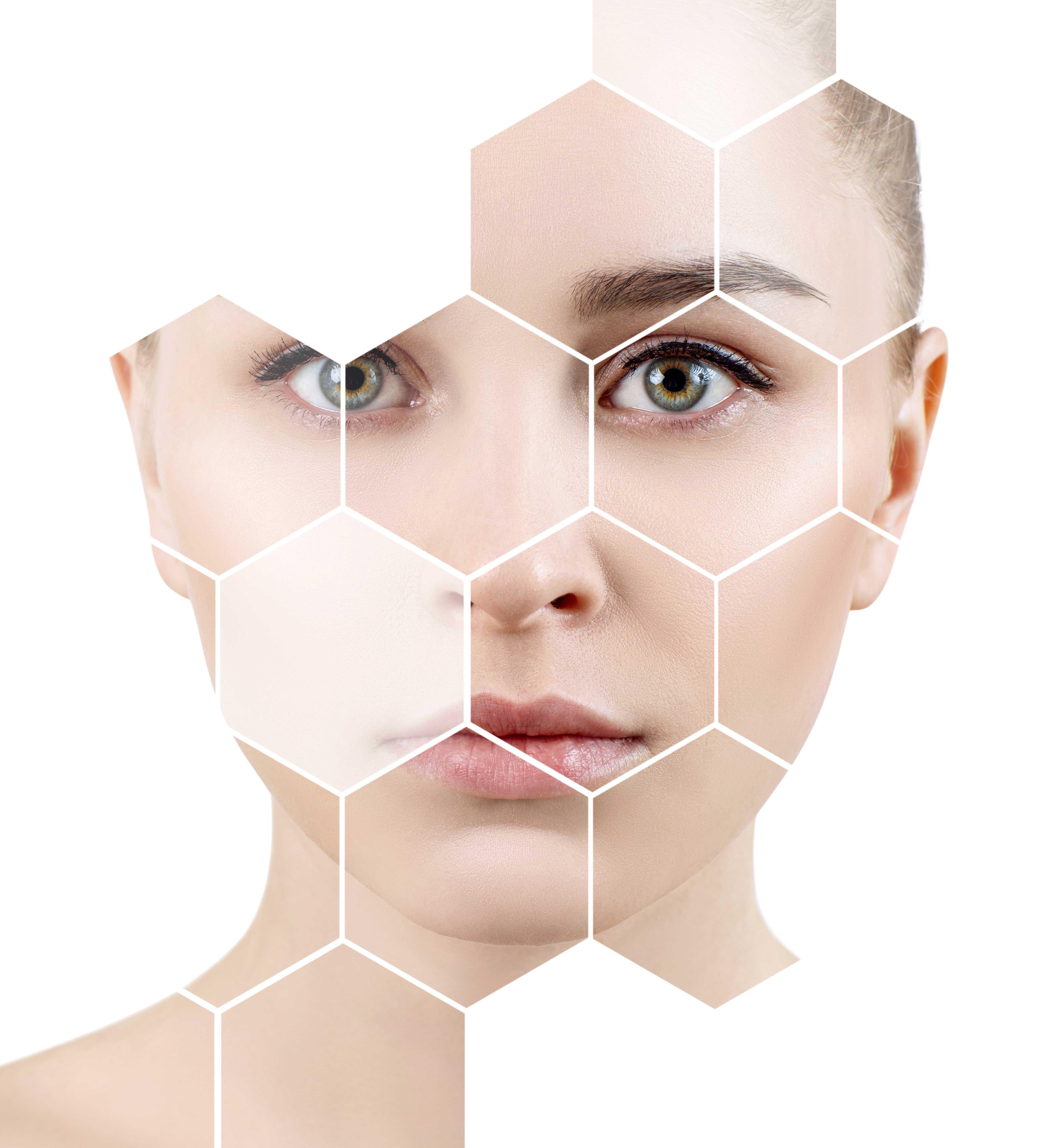 Kezelések Mezoterápiával. Bőrhidratálás, bőrpír, rosacea, aknés bőr, anti-age, pigmentfolt, hegkezelés, sebgyógyulás, tűs mezoterápia, tű nélküli mezoterápia, cellulit, stria, alakformálás, testkezelés